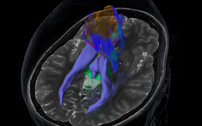 Novalis Circle Symposium: Neurosurgery Developments in the Treatment of High-Grade Gliomas